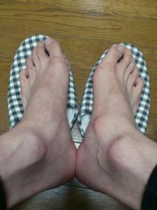 右足が有痛性外脛骨
